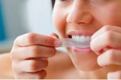 Teeth Whitening at Home - It's Easy!